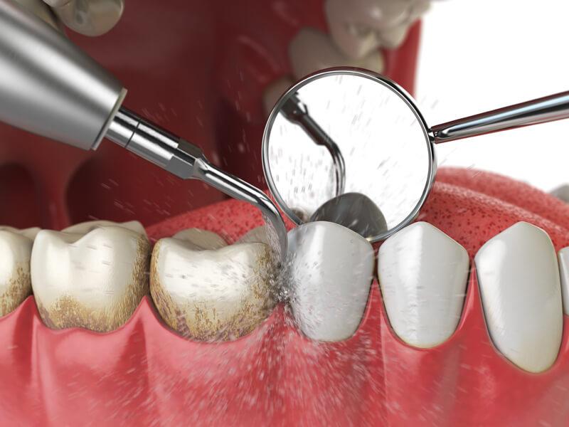 teeth scaling