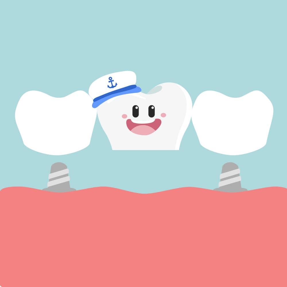 dental crowning