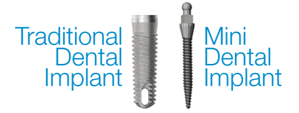 traditional dental implant and mini dental implant