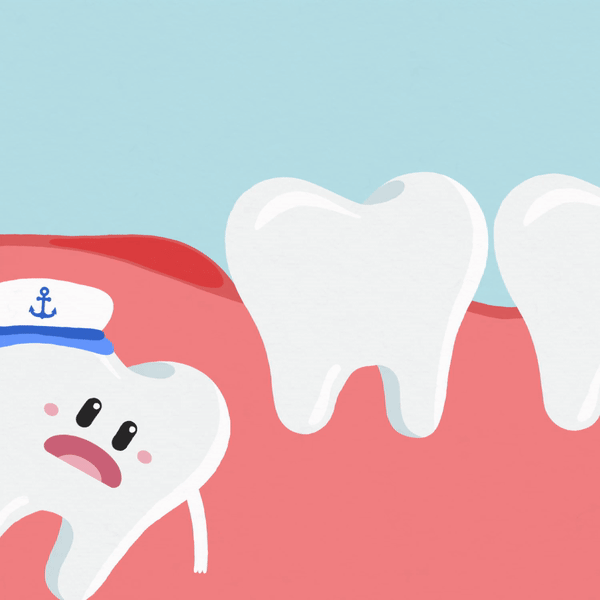 Everything You Should Know About Impacted Wisdom Tooth