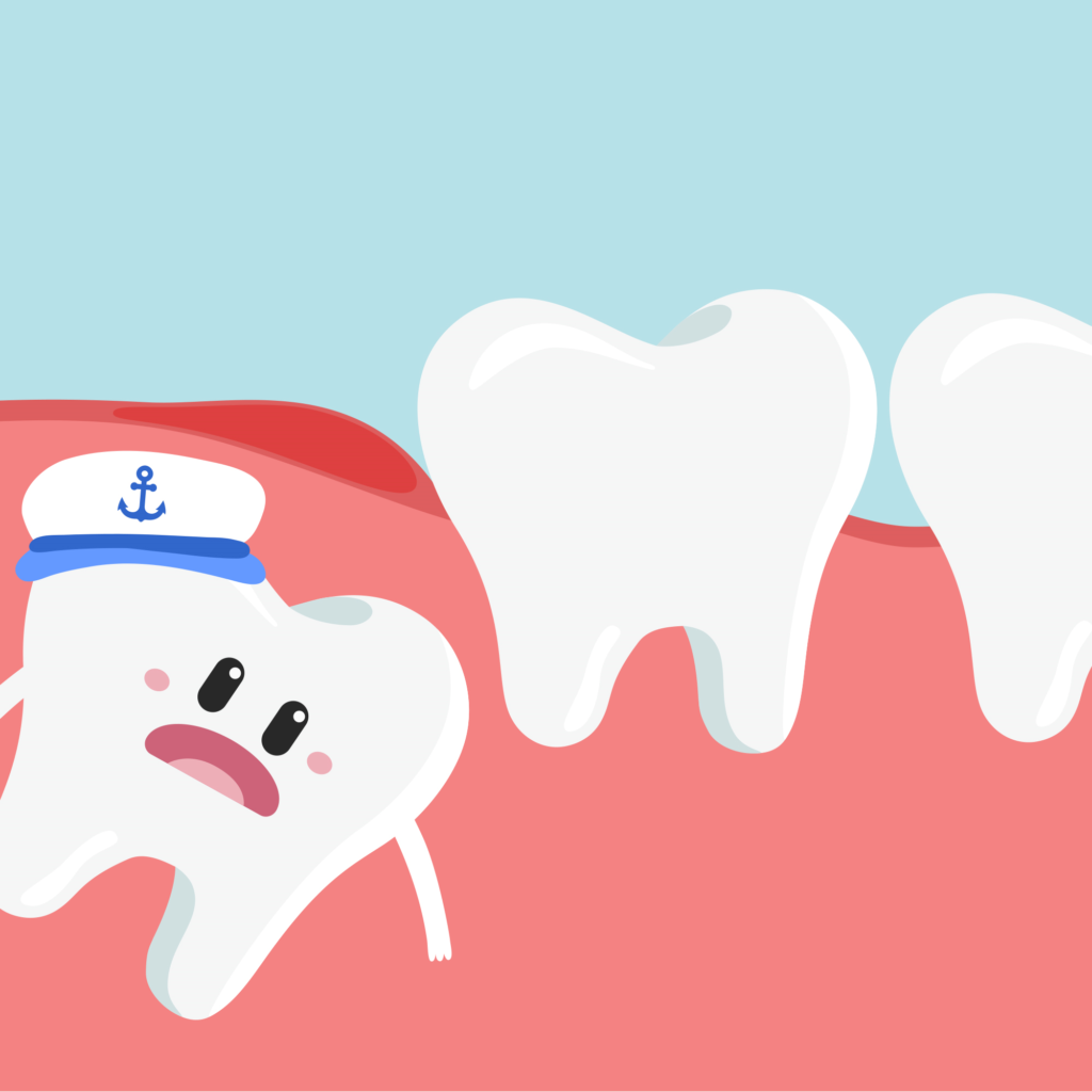 Removing Wisdom Tooth (Total Cost Breakdown)