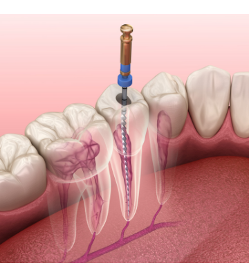 Pain During Root Canal Treatment