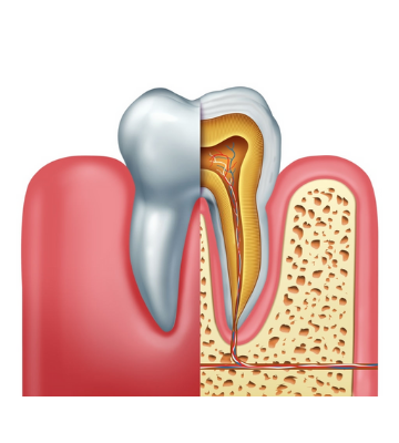 root canal treatment pain